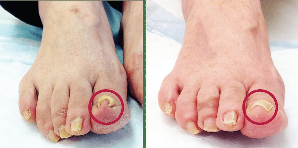mika-hayashi-林美香足病科クリニック‐ニューヨーク-ingrown-nail-巻き爪