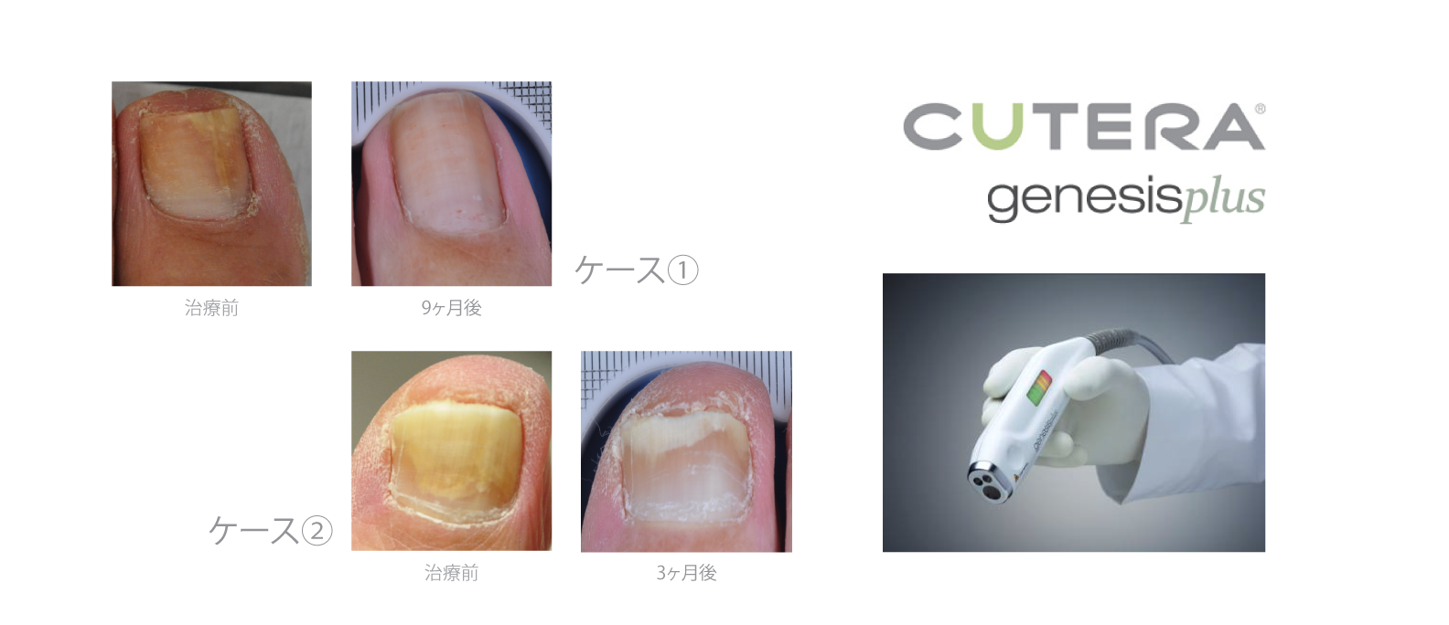 mika-hayashi-林美香足病科クリニック-laser-toenail-fungus-レーザー治療‐爪水虫2