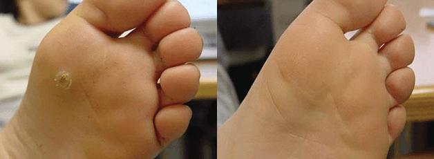 mika-hayashi-林美香足病科クリニック-wart-before-after-イボ‐治療後1